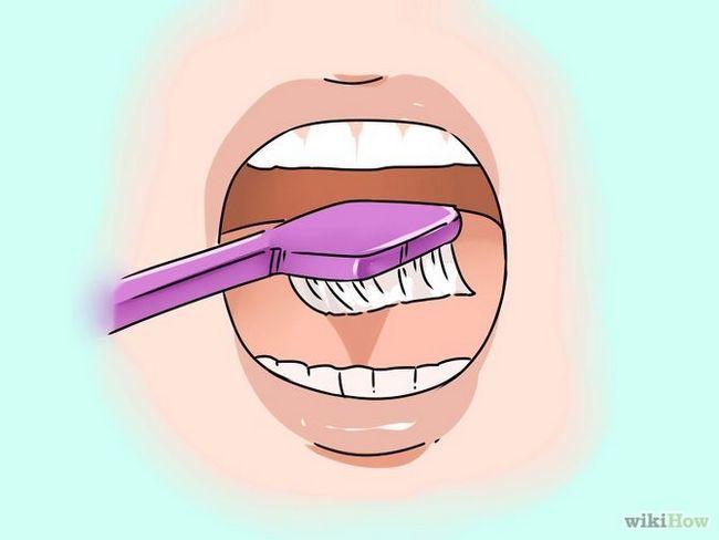 Зображення з назвою Get Rid of White Tongue Step 1