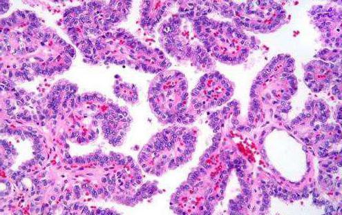 папиллярная карцинома щитовидної залози лікування