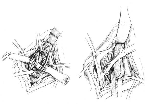 мікрохірургічна операція Мармара