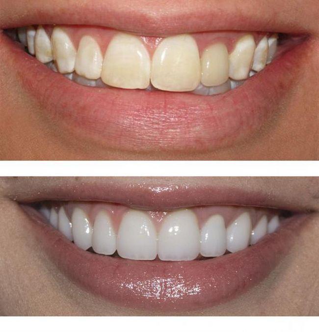 Реставрація зубів: до і після. Художня реставрація зубів