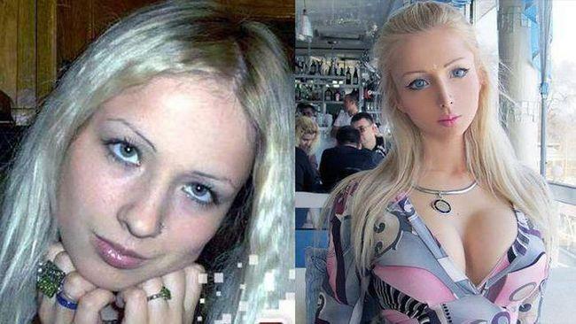 Валерія лукьянова до і після