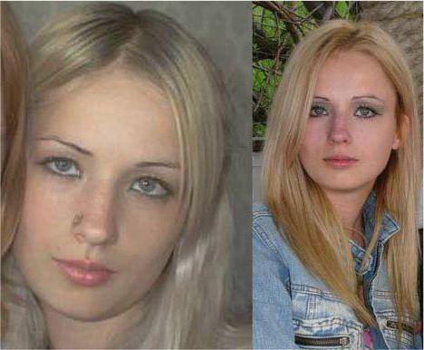 Валерія лукьянова до і після операції