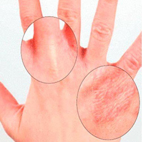 Алергічні висипання на шкірі у дорослих: фото симптомів і способи їх лікування