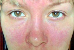 Алергія на обличчі у дорослих - фото симптомів і ефективні методи лікування