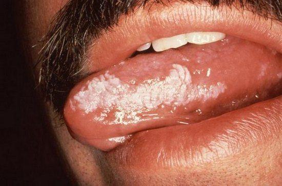 лейкоплакія мови