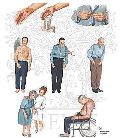Хвороба паркінсона та паркінсонізм (тремтливий параліч)