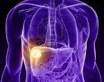 Доброякісні пухлини печінки