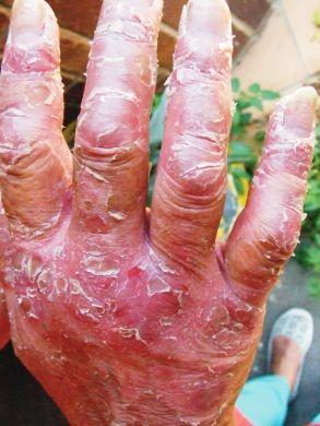 Лікування екземи на руках