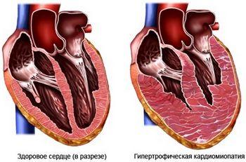 кардіоміопатія