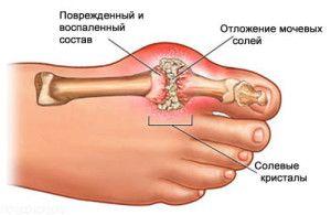 Кісточка на великому пальці ноги
