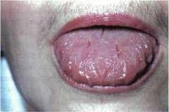 Наліт на мові при хронічному гастриті