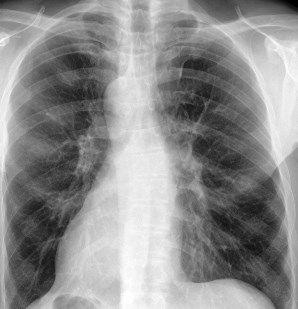 Пневмонія: симптоми, ознаки, лікування пневмонії легенів