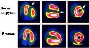 Радіоізотопні дослідження серця
