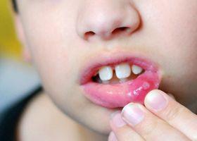 Стоматит на губі, фото