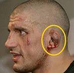 Травми вуха