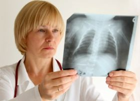 Віз попереджає про повернення туберкульозу