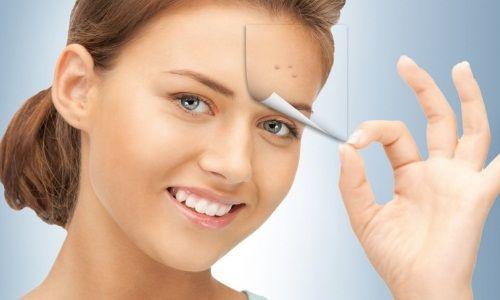 Чим можна прибрати сліди від прищів на обличчі?