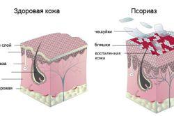схема псоріазу