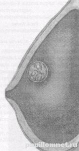 Що робити при появі папіломи в області грудей