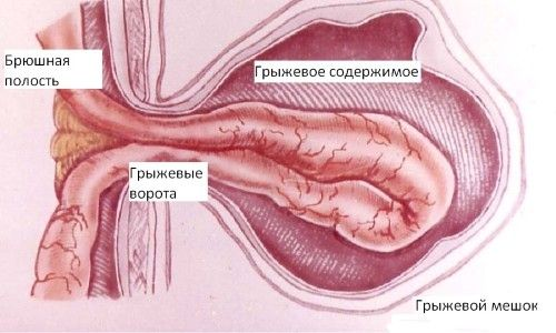 Що являє собою пупкова грижа: операція і післяопераційний період
