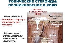 Схема впливу топического стероїду