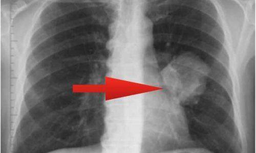 Діагностика та лікування туберкульозу внутрішньогрудних лімфатичних вузлів