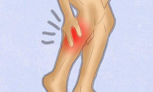 Характеристика удару литкового м`яза і його лікування