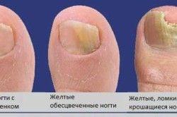 Стадії ураження нігтя грибком