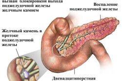 Основні причини панкреатиту
