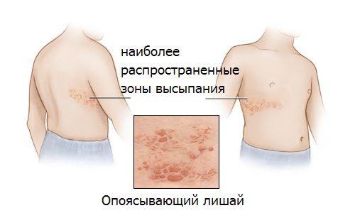Ефективне лікування оперізувального лишаю народними засобами