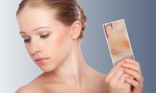 Ефективне лікування себорейного дерматиту народними засобами