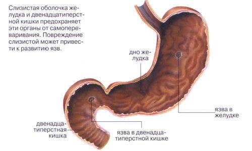 Як хворому вилікувати виразку шлунка в домашніх умовах?