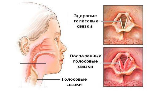 Основні ліки від ларингіту та фарингіту