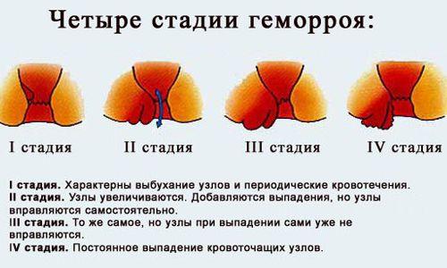 Як використовується мазь гомеопатична від геморою?