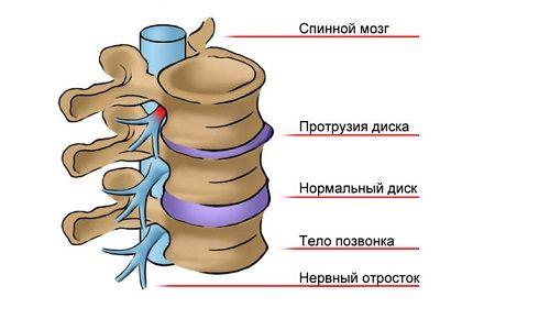 Як лікувати протрузию дисків поперекового відділу хребта?