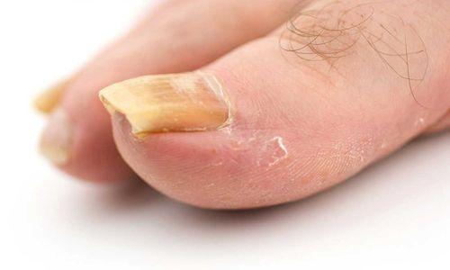 Як лікувати псоріаз нігтів?