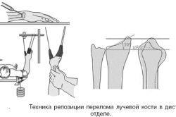 Як накладається пов`язка на руку при переломі