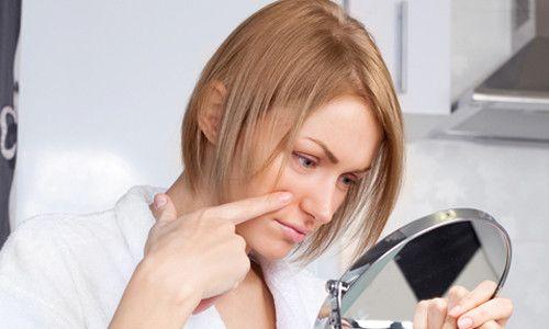 Як проявляється алергія на косметику і як її лікувати?
