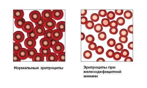 Які потрібні вітаміни при анемії?