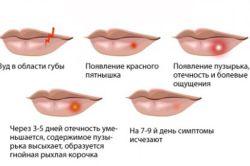 Червоні прищі навколо рота: причини і лікування