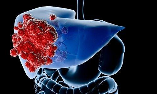 Корисні продукти для профілактики раку