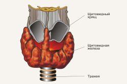 Проблема аутоімунних захворювань щитовидної залози