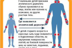 Лікування гормональної маззю від дерматиту