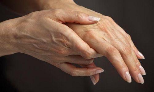 У чому полягає профілактика артриту?