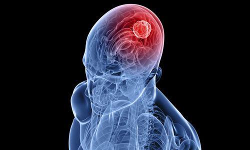 Лікування епілепсії