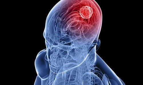 Метастази в головному мозку: ймовірна тривалість життя