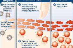 Народні методи і способи лікування алергічного дерматиту