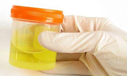 Норма вмісту лейкоцитів в сечі у немовляти