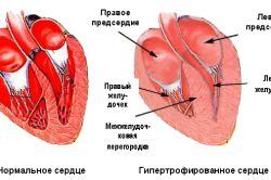 Визначення межі серця як метод діагностики