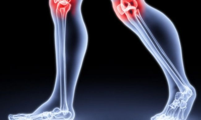 Основні вправи при артриті колінного суглоба